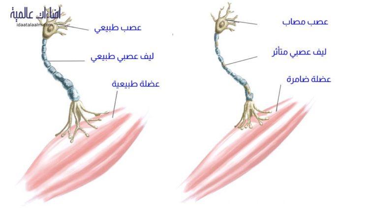 أعراض التصلب الجانبي الضموري