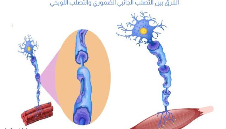 الفرق بين التصلب الجانبي الضموري والتصلب اللويحي