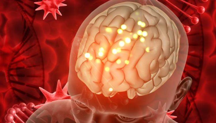علاج تمدد الأوعية الدموية في الدماغ